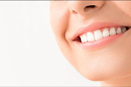 Få et smukt smil ♥ - Kosmetisk tandblegning med PEARLSMILE hos Negle Design, værdi op til kr. 1198,-