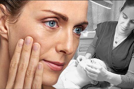 Bekæmp rynkerne med en anti-age behandling! - Diamantslibning inkl. oxygenbehandling hos Janeta Professionel Beauty Care, værdi kr. 1140,-