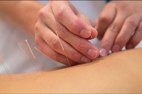 Velkommen hos Viby Zoneterapi & Akupunktur. - 60 minutters akupunktur, værdi kr. 500,-