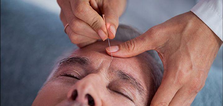 Akupunktur kan bruges ved næsten alle lidelser! - 45-60 min akupunkturbehandling hos Krop & Terapi, værdi kr. 400,-