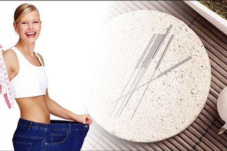 Kom trangen til søde og salte sager til livs - Akupunkturbehandling mod vægttab, værdi kr. 480