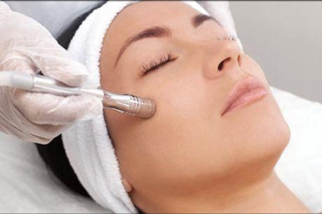 Nyd en skøn ansigtsbehandling hos May Secrets Clinic i Taastrup! - Diamantslibning PLUS - Skøn ansigtsbehandling med Diamantslibning, serum, High frequency machine mm. værdi kr. 600,-