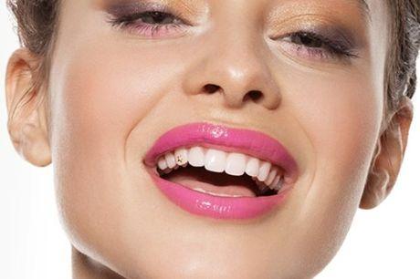Um motivo extra para distribuir sorrisos com esta Aplicação de Piercing Dentário, na Medidental, por apenas 19€