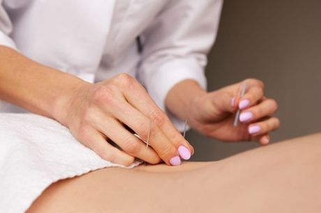 Massage and Acupuncture for One or Two at Natures Way Chinese Herbal Medicine