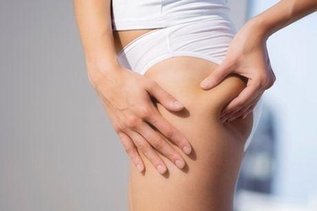 3, 6 o 9 sesiones de cavitación, presoterapia y masaje anticelulítico desde 29,95 € en Te Mimamos