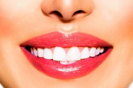 Limpieza bucal, fluorización y pulido dental por 12 €
