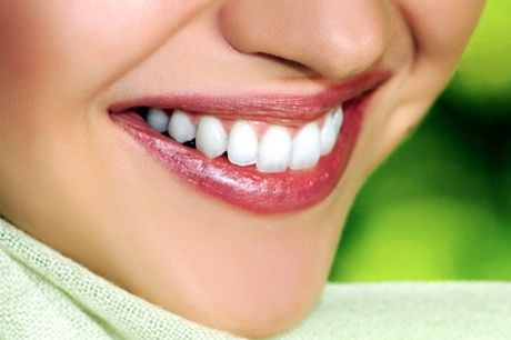 Hollywood Laser Teeth Whitening with Consultation at Neo Derm