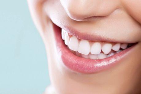 Férula de descarga para una persona con opción a limpieza bucal completa desde 69,95 € en Dentálita