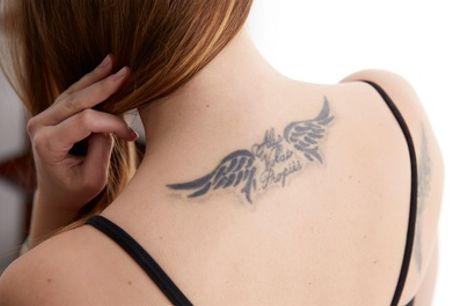 Laat je tatoeage verwijderen met de Harmony XL-laser bij Clinic63 in Amsterdam, Den Haag, Eindhoven of Meerssen