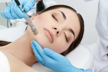 One or Three Sessions of Microdermabrasion at ABSA