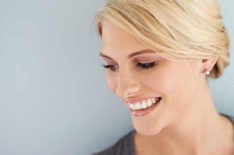 Kosmetisches Zahnbleaching Standard und/oder Refresh bei Kosmetische Zahnaufhellung Pearl Smile(bis zu 57% sparen*)