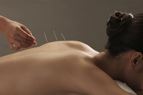 Tuina-behandeling of (laser)-acupunctuur bij Spirit and Touch