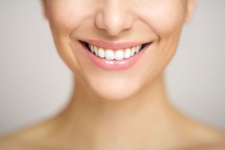 60 Min. kosmetisches Zahn-Bleaching für 1 Person im Beauty Salon Bella (bis zu 65% sparen*)