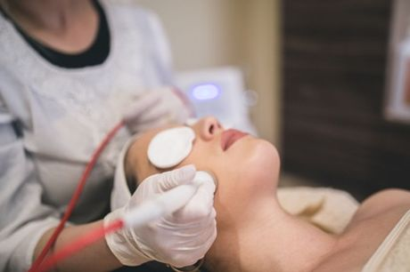 One or Three Sessions of Microdermabrasion at Aloha Wax Beauty Salon