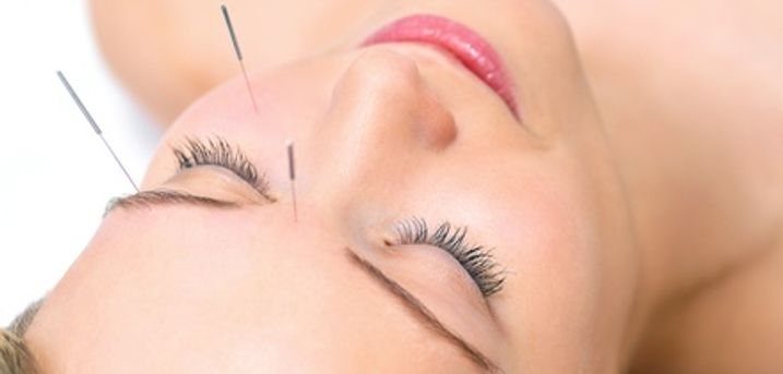 Acupuncture with Massage and cupping: One-Hour Session including consultation at Chinese Medicine Clinics