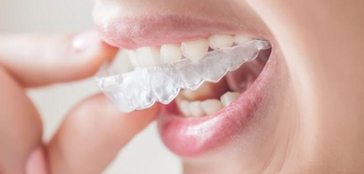 Invisible Braces ,299 at Wallisdown Dental Practice