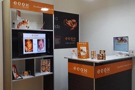 Ecografia 4D no Dolce Vita Tejo: Conheça o Seu Bebé Mesmo Antes de Nascer com a Ecox4D por 44€!