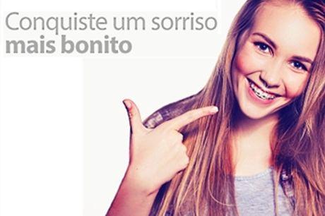 SUPER PREÇO! Aparelho Dentário Fixo na Clínica Médica Dentária na Trindade, no Porto por APENAS 19€.