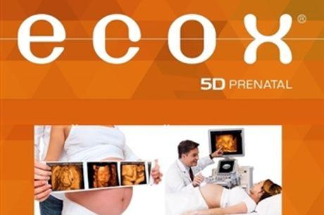 Sessão Sound de Ecografia 5D no Parque das Nações em Lisboa com a Ecox4D por 135€! Fique com as Fotos, Vídeo e Batimento do Coração do Bebé!