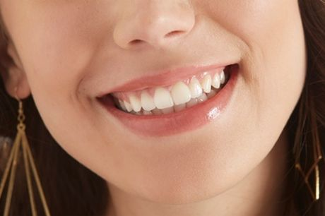 Up to Eight CompositeDental Veneers with Exams, X-Rays, Follow-Up Visits and Trays at VidaDent
