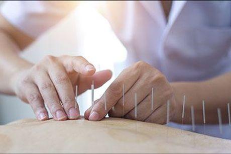 Professionel akupunkturbehandling i Hellerup! - 45 min. effektiv akupunktur hos Akupunktur - Kinesisk Klinik, værdi kr. 500,-