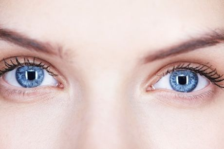 Eyelid Skin Tightening Treatment for Upper- or Under-Eye Area or Both at Suzanne's Beauty Room
