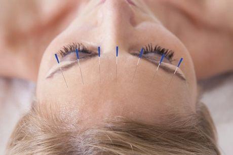 3, 6 o 12 sesiones de acupuntura con diagnóstico desde 29 € en Caduceo Salud