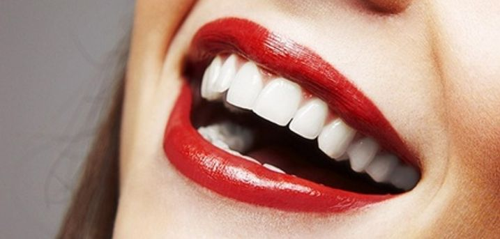 Teeth Whitening With Check Up at Smileright