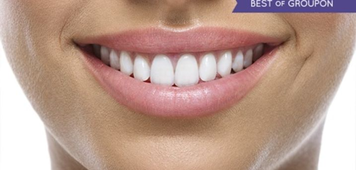 Dental Implant With Crown or Three-Unit Bridge at Dentcare1 Smile