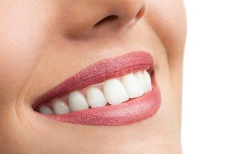 Férula de descarga blanda, semirrígida o rígida con opción a limpieza dental desde 44 € en Improdent