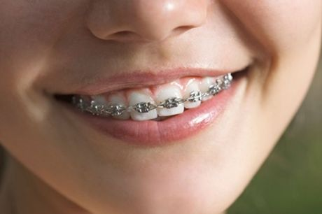 Metal Dental Braces for One or Both Arches at VidaDent