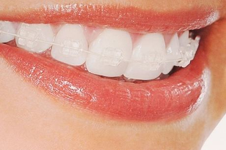 Clear Braces for One or Both Arches with Fixed Retainers at VidaDent