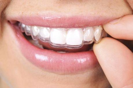 Visita odontoiatrica, pulizia denti più bite per bruxismo da Centro Odontoiatrico Galaxy (sconto fino a 85%)