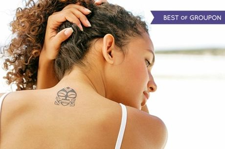 Laser Tattoo Removal: Two or Four Sessions at Body Perfections