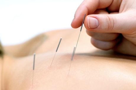 60-Minute Acupuncture Session or 30-Minute Massage with 30-Minute Acupuncture Session at AcuBreathing