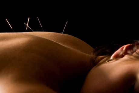 30-Minute Acupuncture Treatment with Consultation and Optional 15-Minute Cupping at Thai Spa