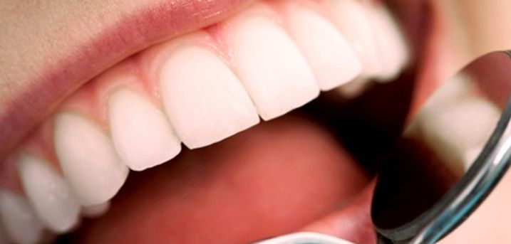 Visita odontoiatrica e pulizia, otturazione estetica e sbiancamento led (sconto fino a 89%). Valido in 2 sedi