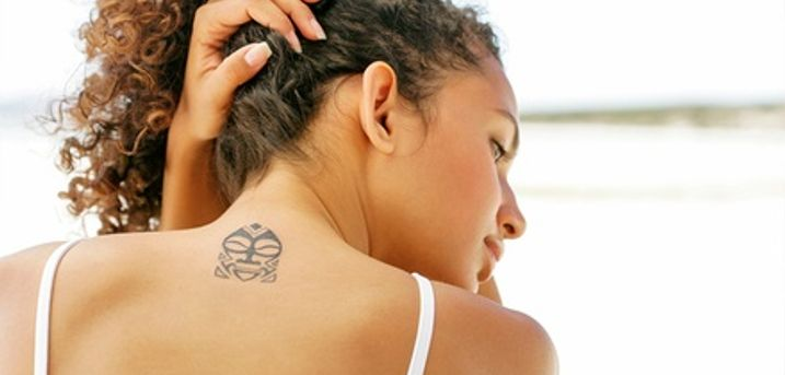 Three Sessions of Laser Tattoo Removal on a Choice of Areas at Sheffield Laser