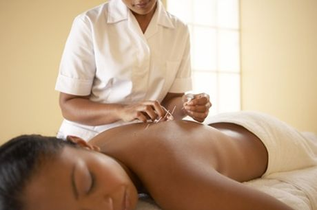 45-Minute Acupuncture with Consultation and Optional Tui Na at MA Health and Wellbeing