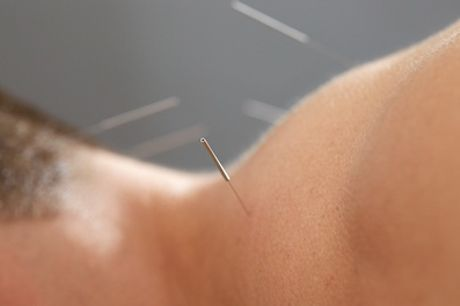 One, Two or Three 30-Minute Acupuncture Sessions at Yakushi Healing Centre