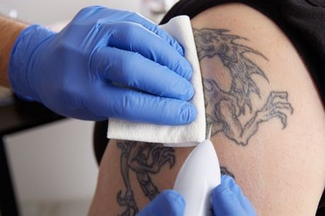 Three Sessions of Laser Tattoo Removal on Small, Medium or Large Area at Queen Mob