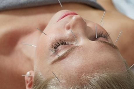 45-Minute Acupuncture Session with 15-Minute Massage at Natural Health