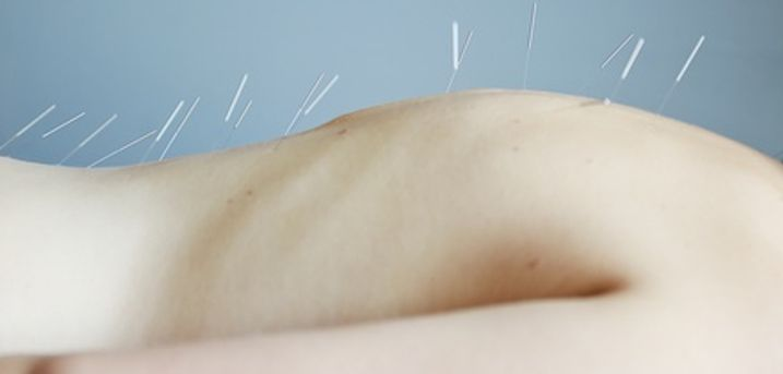 One-Hour Massage and Acupuncture with Consultation at Lord of Body Massage and Acupuncture House