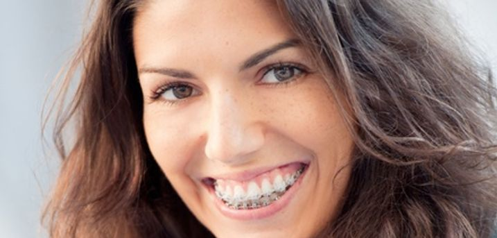 Clear Braces for One or Two Arches with Fixed Retainers at iDental