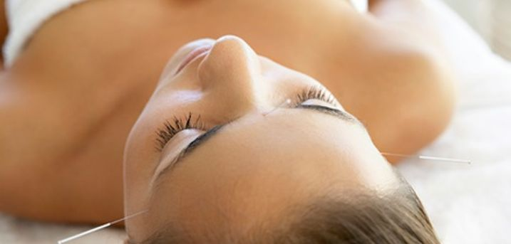 One-Hour Acupuncture Session at Natural Healing