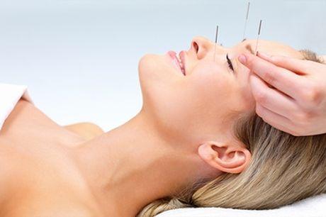 Akupunktur-Behandlung zum Gewichtsmanagement bei Heilpraktikerin Özlem Bostancier ab 24,90 € (bis zu 60% sparen*)