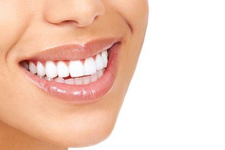 Visita odontoiatrica con pulizia denti e smacchiamento più sbiancamento o bite anti bruxismo (sconto fino a 85%)