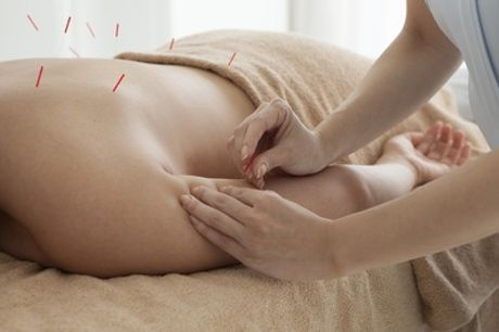 Acupuncture or Cupping Session Focused on Physical or Mental Aches at Active Care Clinic