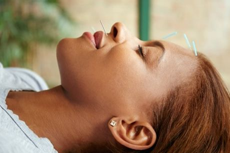 One-Hour Cosmetic Acupuncture Facial at Physiotherapy Sheffield Sports Injuries Clinic