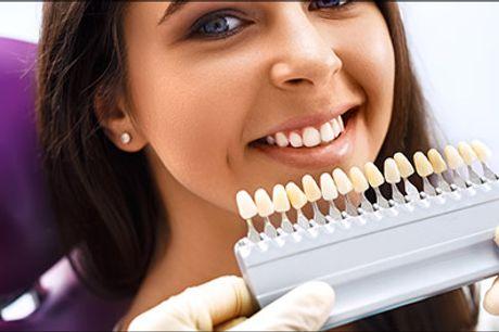 Hurtig og effektiv tandblegning, super pris.. - Få flottere hvidere tænder med PolaOffice tandblegning hos Royal Sara. Værdi kr. 1200,-